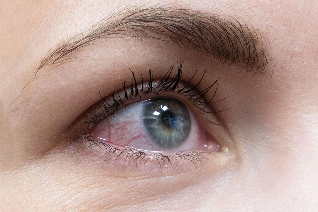 Bindehautentzündung (Konjunktivitis) behandeln lassen in der Augenklinik Dr. Hoffmann