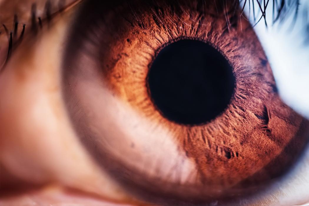 Hornhautkrümmung - Glaukom - Behandlung in der Augenklinik Dr. Hoffmann